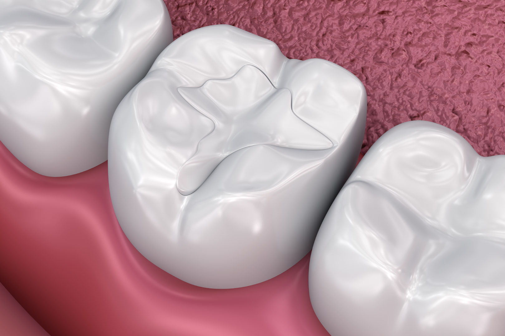 Dental Fillings - Lux Smiles Dental