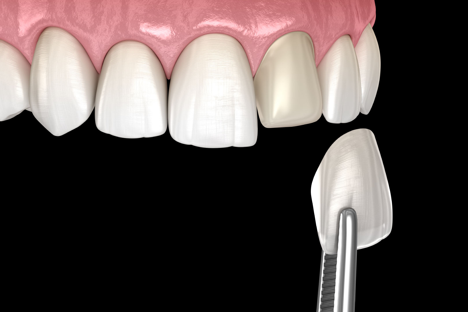 Dental Veneer - Lux Smiles Dental