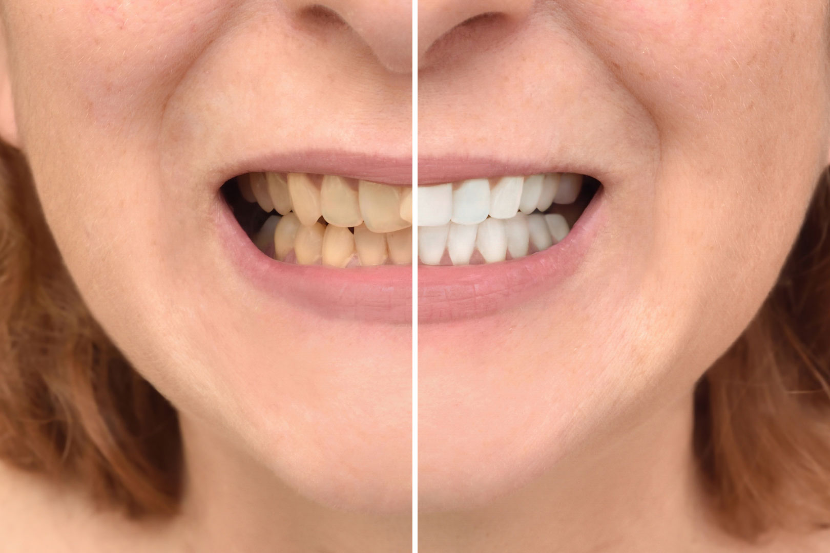 Smile Makeover - Before and After - Lux Smiles Dental