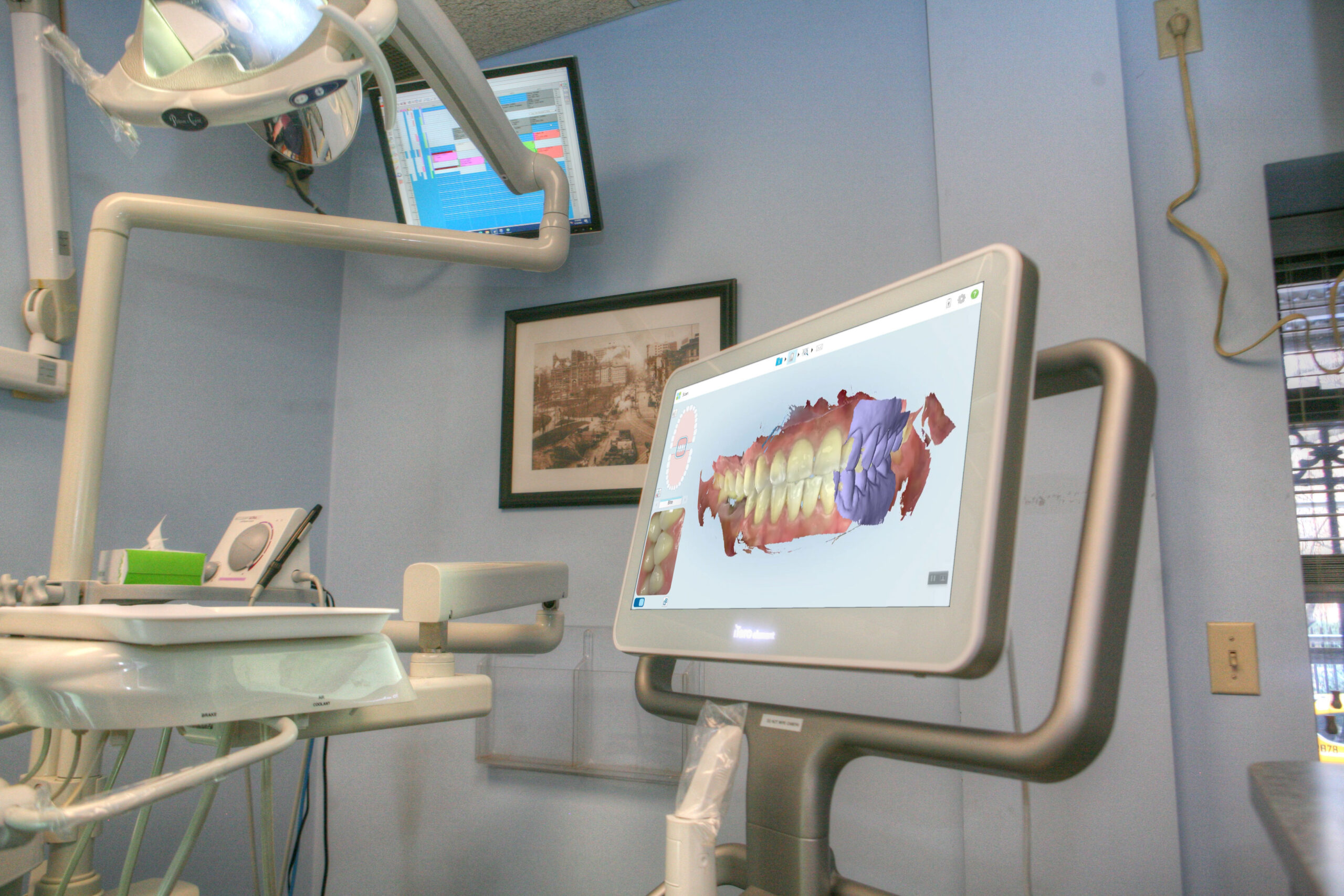 iTero 3D Scanner - Lux Smiles Dental
